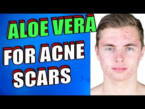 How To Use Aloe Vera OVERNIGHT To Treat Acne Scars, Pimples & Zits