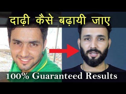 How to Fix a Patchy Beard in 5 days |  घनी दाड़ी उगाने का सबसे अच्छा तरीका | Grow beard faster