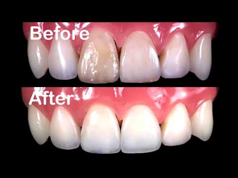 Your Teeth has been Broken/Damaged?