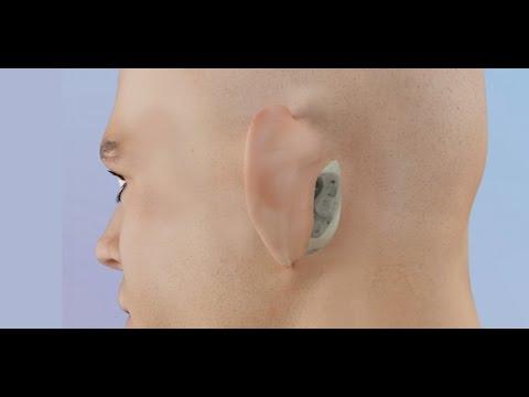 Mastoid Surgery (Basic to Radical Mastoidectomy)
