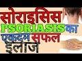 Psoriasis सोराइसिस का अद्भुत अचूक आयुर्वेदिक इलाज||HOW TO CURE PSORIASIS PERMANENTLY||BY DR.PRASHANT