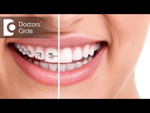 What happens to teeth after the braces are removed? - Dr. Divyashree Rajendra