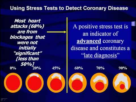What Does Your Stress Test Really Mean? - The Princeton Longevity Center