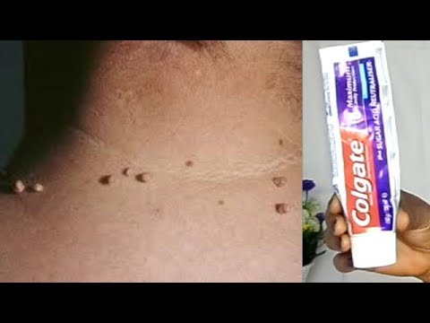 REMOVE SKIN TAG IN 1 NIGHT OF APPLYING TOOTHPASTE
