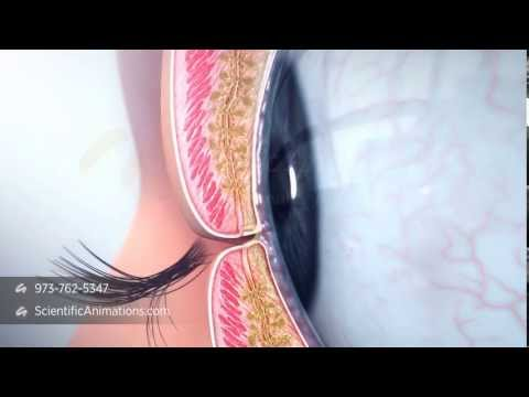Meibomian Gland Dysfunction - Dry Eye Treatment