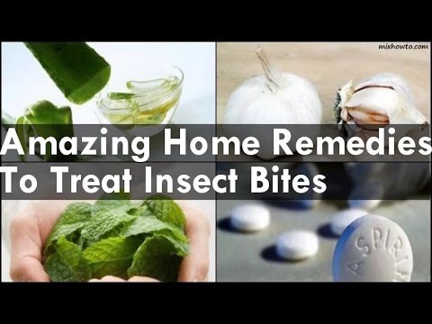 Home Remedies To Treat Insect Bites