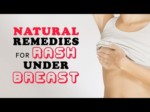 Natural Remedies for Rash Under Breast