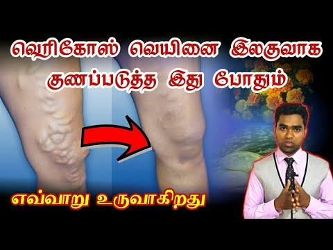 வெரிகோஸ் வெயின் நோயை இலகுவாக எவ்வாறு குணப்படுத்துவது | Varicose vein herbal treatment in tamil