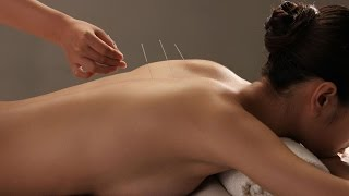 Acupuncture to Treat Alcoholism | Alcoholism