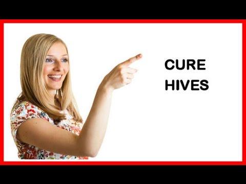 Urticaria Pigmentosa - Treatments For Reducing Symptons Of Hives - Urticaria Pigmentosa