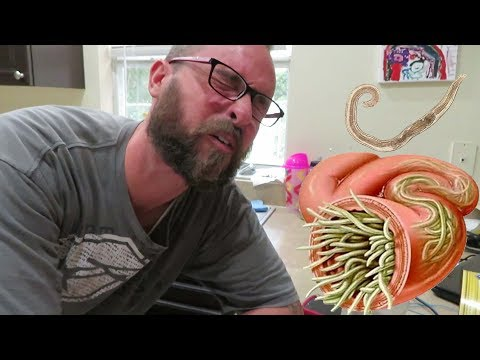 **WE HAVE PINWORMS!!**( DAY #308 )