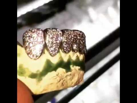Atlanta Custom Gold Diamond Grills