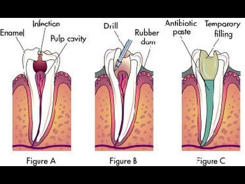 4 Root Canal Alternatives