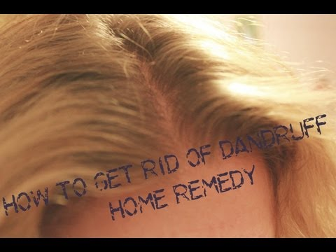 How To Get Rid Of Dandruff Home Remedy  - BEAUTIFIED WITH KAT