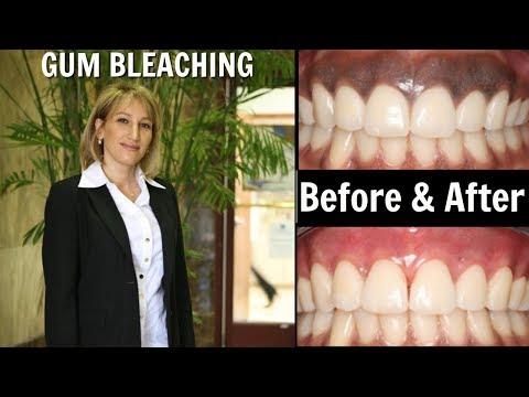 Gum Bleaching Los Angeles - Dr. Delaram Hanookai