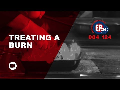The basics on burns and how to treat them