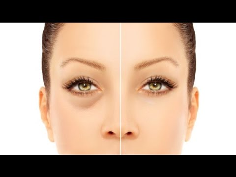 How to Get Rid of Puffy Eyes from Crying | 6 Best and Natural Methods