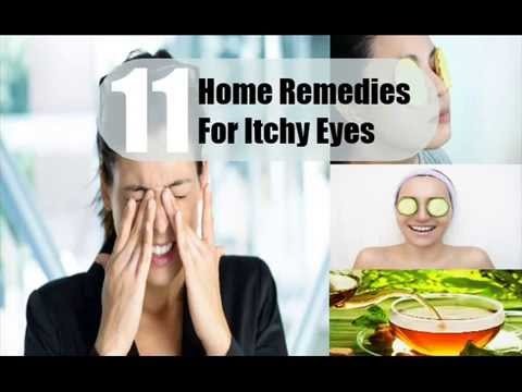 11 Home Remedies For Itchy Eyes
