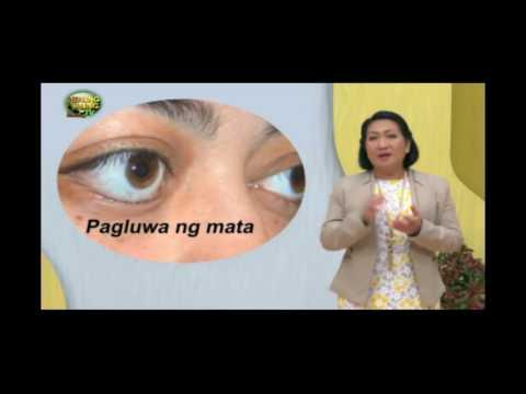 Healing Galing SO8EP06   Sore Eyes pt1