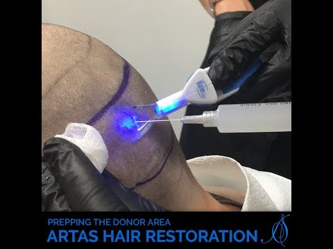 Prepping the Donor Area for Artas Robot Hair Restoration