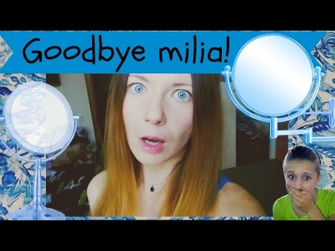 7❤How to get rid of face milia. My story and removed cyst