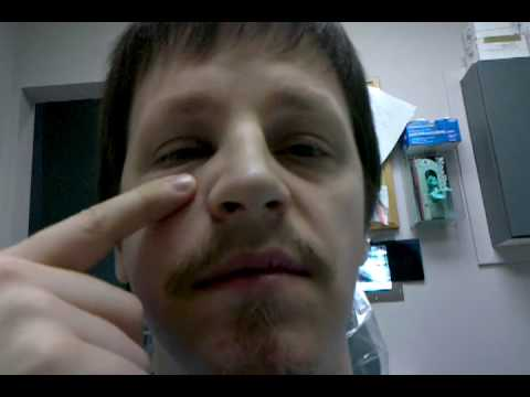 Puffy face from abscessed tooth