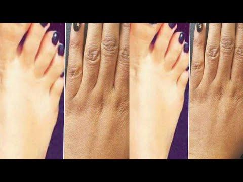 How to get Bright,Soft and Wrinkle free Hands and Feet!!!8