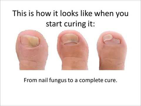 Best Treatment For Nail Fungus – Fast toe Nail Fungus Treatment
