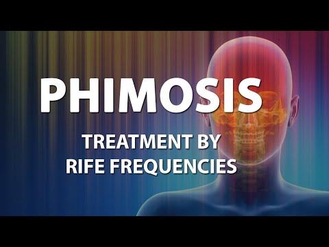 Phimosis - RIFE Frequencies Treatment - Energy & Quantum Medicine with Bioresonance