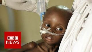Humanitarian crisis: 20m at risk of famine and starvation - BBC News