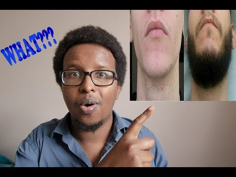 Regaine/Rogaine for beard growth-before and after results