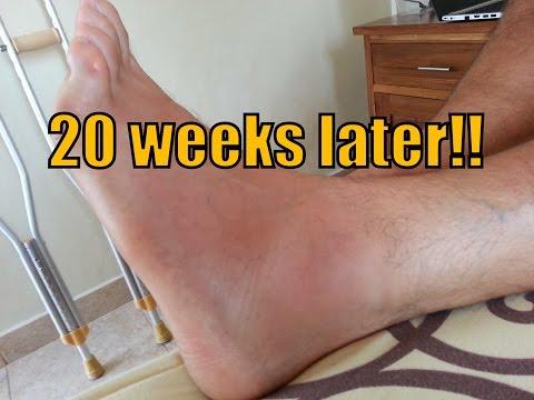 Grade 2 Ankle Sprain | Update