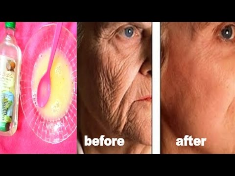 STRONG TREATMENT + MASSAGE FOR  FACE AND MOUTH WRINKLES  |CLEAR  WRINKLES IN 3 DAYS