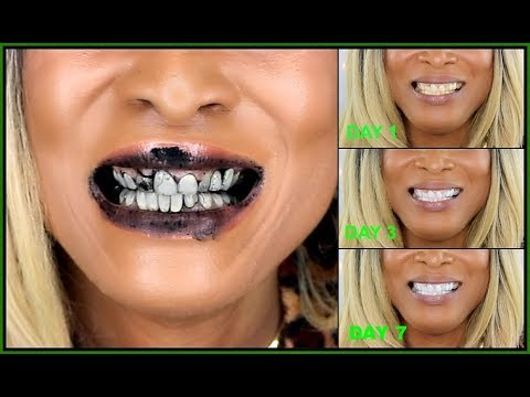 I USE CHARCOAL ON MY TEETH FOR SEVEN DAYS |HOW TO WHITEN TEETH WITH CHARCOAL| Khichi Beauty