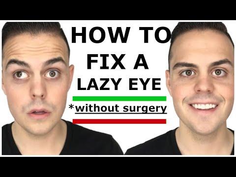 Best Lazy Eye Story & How I Fixed My Lazy Eye Naturally