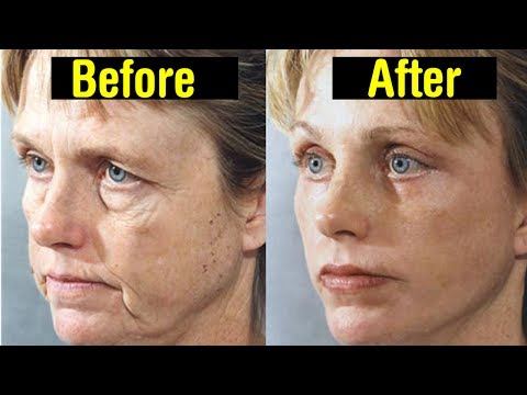 10 Ways to Get Rid Of Fat on Your Face||How to Get Rid of Face Fat Naturally