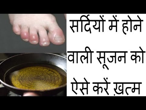 Amazing Tips for the Swelling of Fingers in Winter Season in Hindi || Health Tips