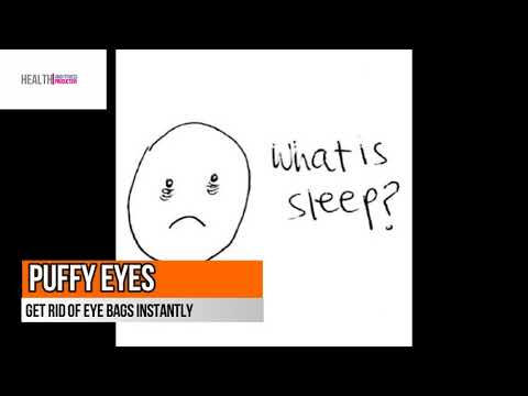 Puffy Eyes - How to Get Rid Of Eye Bags Instantly - Eye Bags Removal