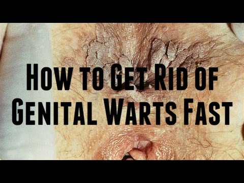 How to Get Rid of Genital Warts Fast