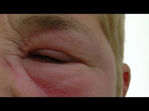 Treatment of gross eye swelling following an insect bite