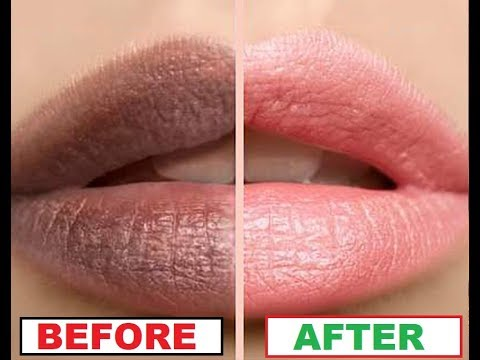 How To Get Soft Pink Lips Overnight  | All About your Health