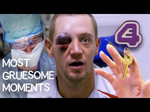 GROSSEST VIDEO EVER?! Spider Trapped in Ear, Fingers Chopped Off & More | Bizarre ER!!