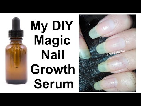My Magic DIY Nail Growth Serum (For Those Who Hate Smell of Garlic) NAIL 101 | Rose Pearl