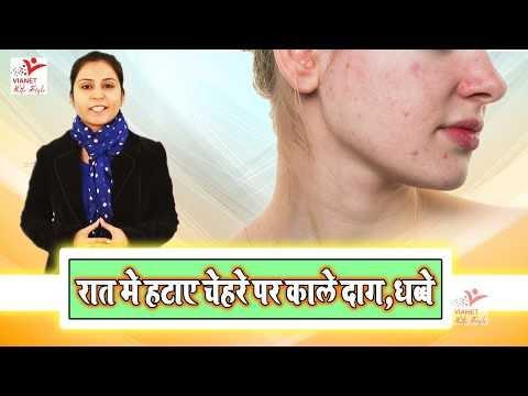 Daag Dhabe Hatane Ke Upay ||  रात में हटाए चेहरे पर काले दाग, धब्बे | Vianet Lifestyle