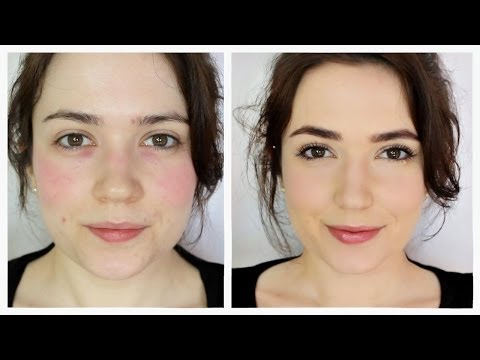 How To Cover Rosacea/Redness