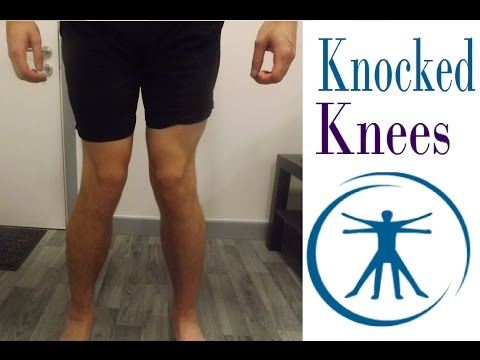 How To Fix Knocked Knees (Genu Valgum) With Correction Exercises