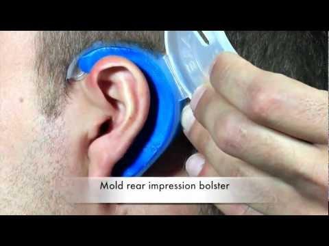Cauliflower Ear Prevention & Treatment [EarSplintz 2018]