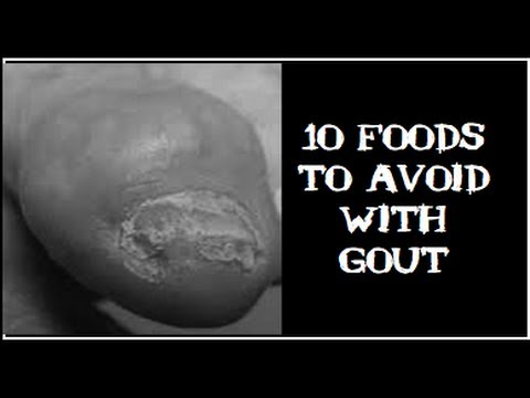 10 Foods To Avoid With Gout When You Are On A Uric Acid Diet