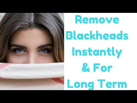 9 Most Effective Natural Methods To Remove Black Heads From Face , Nose & Other Parts