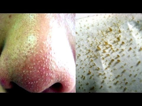 How To Remove Tons Of Blackheads & Whiteheads Instantly! Home Remedies